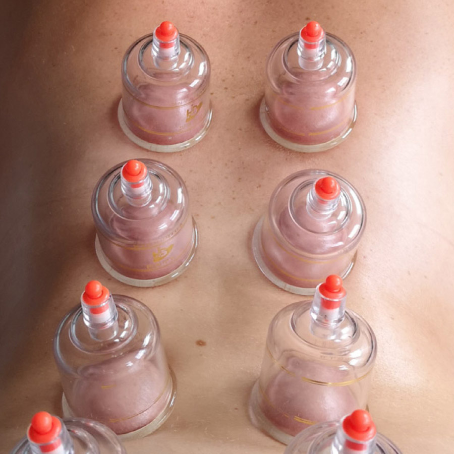 Dry Cupping Colour